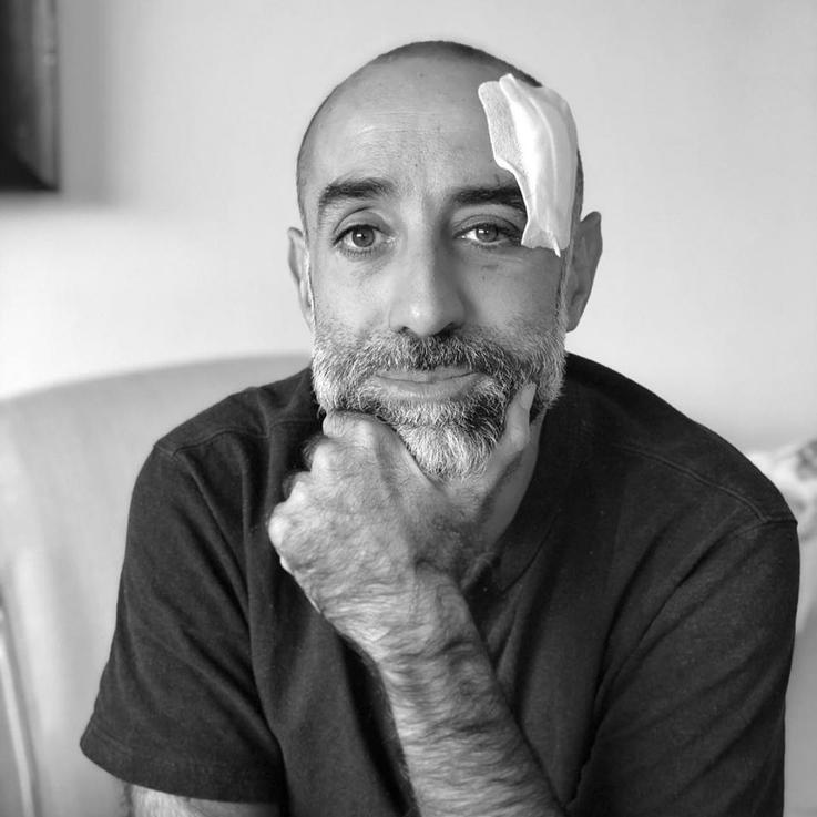 المصمم ربيع كيروز يكشف تعرضه لإصابة في الدماغ إثر تفجير بيروت